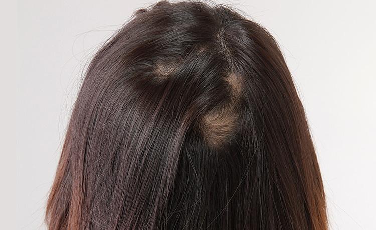 女性の円形脱毛症