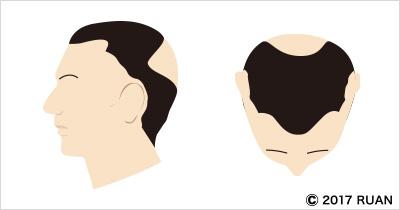 蛇行型脱毛症