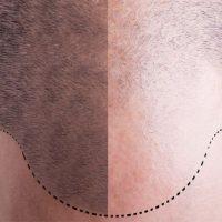 ヘアサイクルの乱れが薄毛を引き起こす?薄毛・抜け毛の原因や種類のまとめ