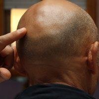 抜け毛や白髪はなぜ起こる?髪の毛が生える仕組みや毛周期について