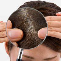 産後や更年期の抜け毛隠しにも役立つ、女性の薄毛を自然に隠す方法