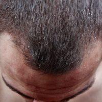 紫外線やアレルギーも原因に?乾燥による薄毛・抜け毛から頭皮を守る方法
