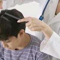 女性や子どもの円形脱毛症の原因とは?対処法はある?
