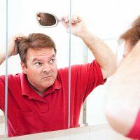 薄毛・抜け毛におすすめのケア8つ(ヘッドスパ・シャンプー・髪の乾かし方・マッサージ・睡眠・紫外線予防・食生活・運動)