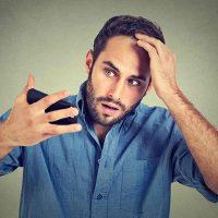 その薄毛や抜け毛、AGAかも?症状や原因、種類、治療法について