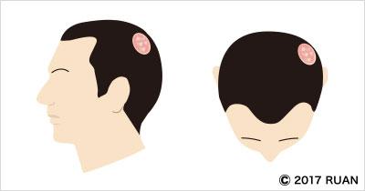 粃糠性脱毛症