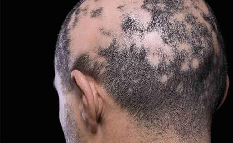 円形脱毛症の男性