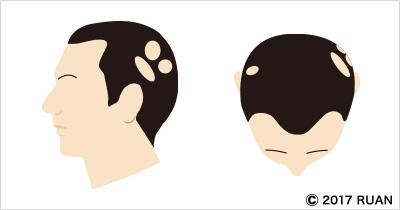 多発性脱毛症