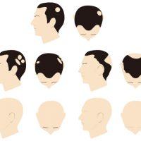 どんなことに気をつける?さまざまな円形脱毛症の症状や種類